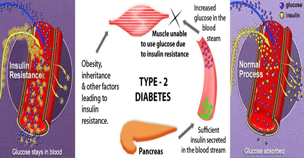 1 adult diabetes type
