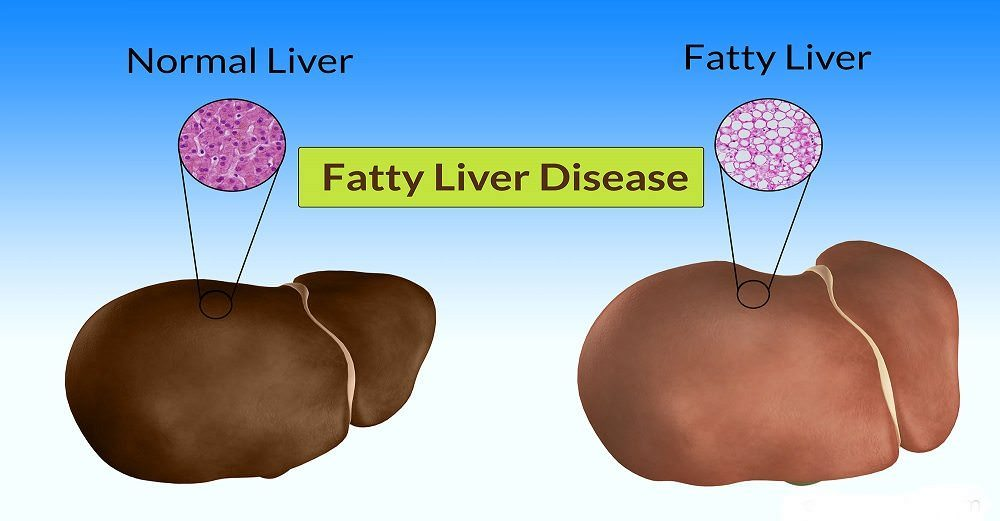 How To Treat Fatty Liver Naturally At Home