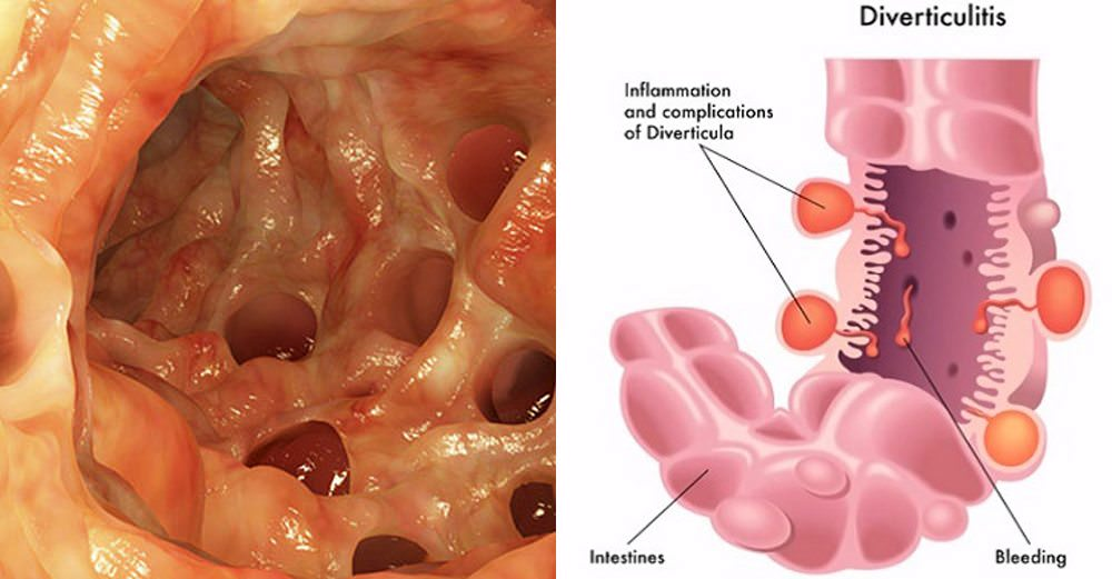 How To Treat Diverticulitis Naturally